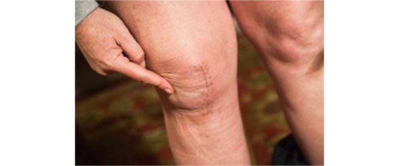 Danno estetico molto visibile ginocchio